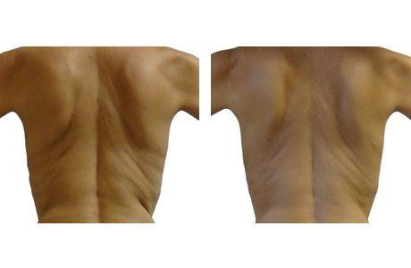 LPG Endermologie Lipomassage Espalda