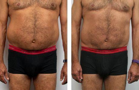 Tratamiento LPG Endermologie Lipomassage ™ Hombre